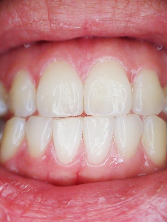 www.seodigg.fr_Pose d'implants dentaires  les étapes à connaître